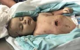 17 عام على استشهاد الطفله الرضيعه ايمان مصطفى حجو الخزي والعار لقتلتها
